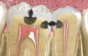 dantų plombavimas Tauragėje