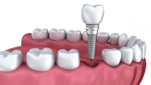 Dantų implantacija Tauragėje