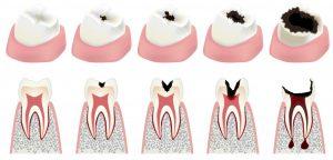 Dantų kanalų gydymas