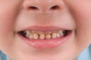 vaikų odontologas Tauragėje