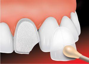 dantų atkūrimas