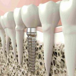 dantų atkūrimas implantais