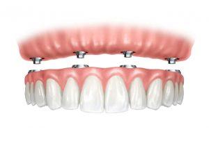 dantų protezas ant implantų